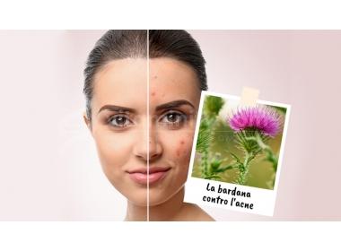 Bardana: acne sotto controllo con la pianta amica della pelle