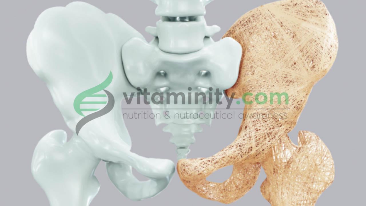 Prevenire L'osteoporosi con l'alimentazione