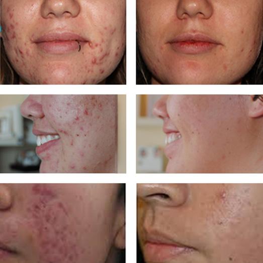 bardana acne